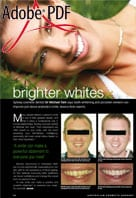 Brighter whites article