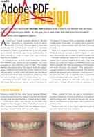 Smile design article