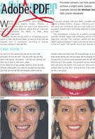 A thin veneer article