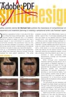 Smile design second article