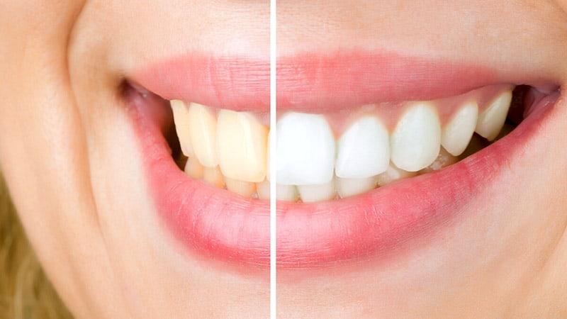 Teeth Whitening vs Veneers: Which is best and why?